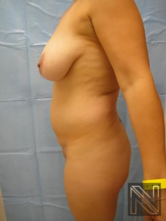 Liposuction: Patient 7 - Before Image 2