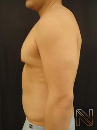 Gynecomastia: Patient 3 - Before Image 4