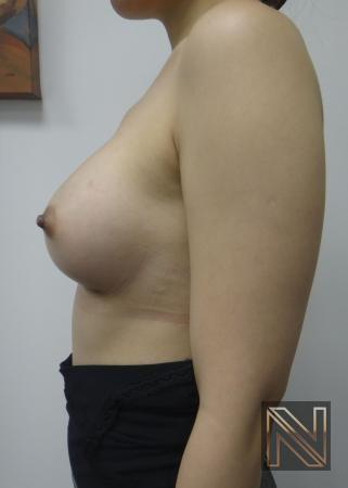 Breast Augmentation: Patient 16 - After Image 5