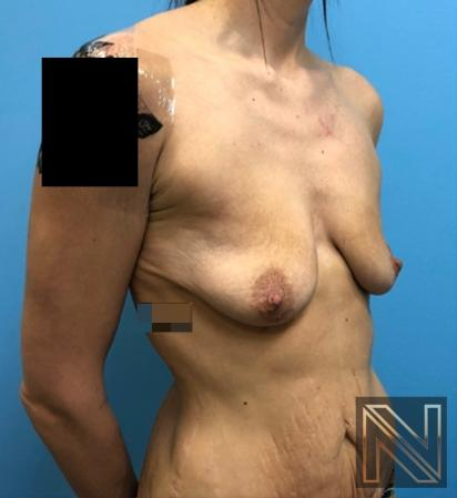 Breast Lift: Patient 18 - Before and After Image 2