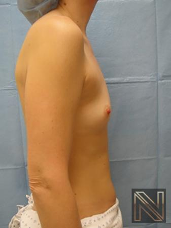 Breast Augmentation: Patient 5 - Before and After 5