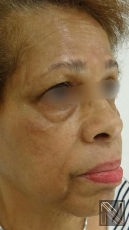 Laser Skin Resurfacing - Face: Patient 2 - Before and After Image 3