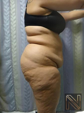 Abdominoplasty: Patient 14 - Before and After Image 3