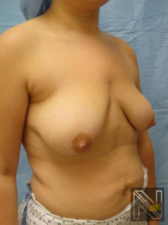 Breast Lift: Patient 10 - Before and After Image 3