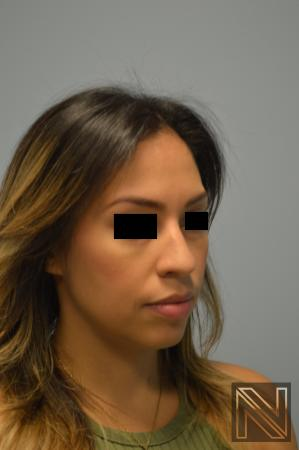 Rhinoplasty: Patient 6 - Before and After Image 5