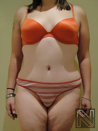 Abdominoplasty: Patient 5 - After Image
