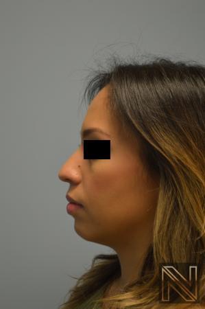 Rhinoplasty: Patient 6 - Before Image 2