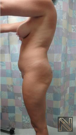 Butt Augmentation: Patient 3 - Before and After Image 4
