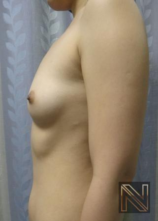 Breast Augmentation: Patient 16 - Before and After Image 5
