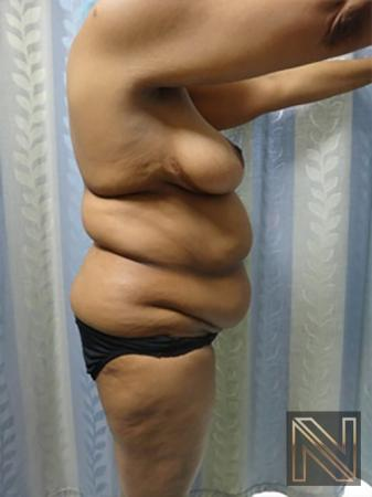 Abdominoplasty: Patient 8 - Before and After Image 3