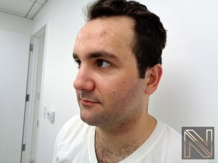 Laser Skin Resurfacing - Face: Patient 3 - Before Image 2