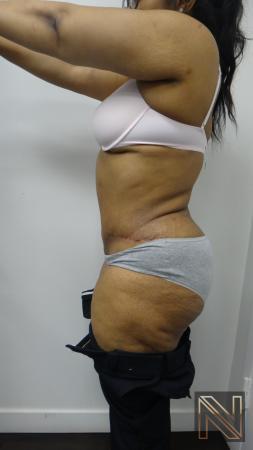 Abdominoplasty: Patient 23 - After 2