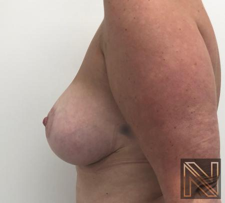 Breast Lift: Patient 16 - After 2