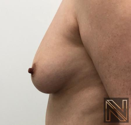 Fat Transfer - Body: Patient 2 - Before Image 4