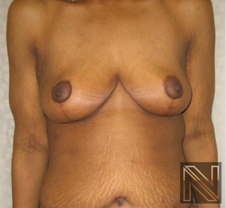 Breast Lift: Patient 13 - After Image 1