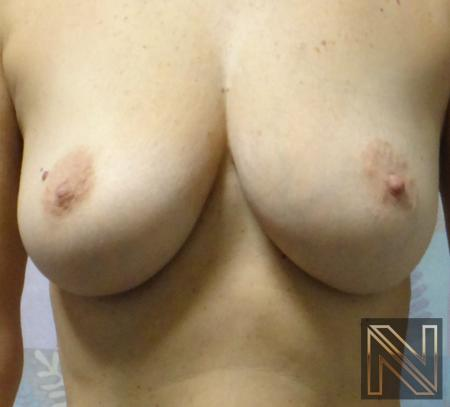 Fat Transfer - Body: Patient 1 - Before and After 5
