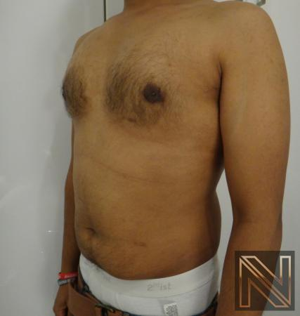 Gynecomastia: Patient 6 - After 2