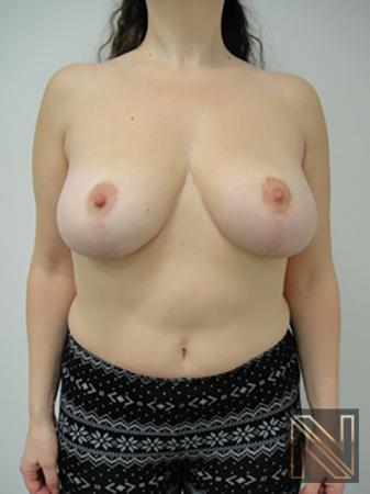 Breast Reduction: Patient 7 - After Image 1