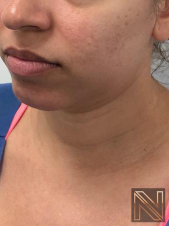 Liposuction: Patient 2 - Before Image 3