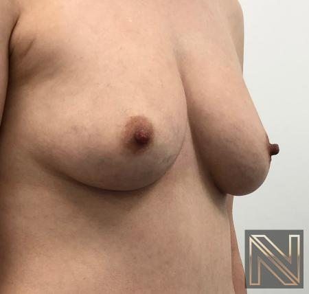 Fat Transfer - Body: Patient 2 - Before Image 1