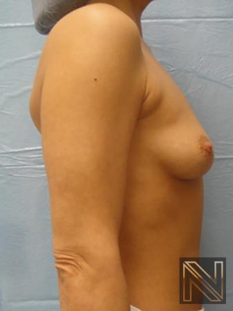 Breast Augmentation: Patient 10 - Before and After Image 5