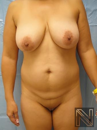 Liposuction: Patient 7 - Before Image 1
