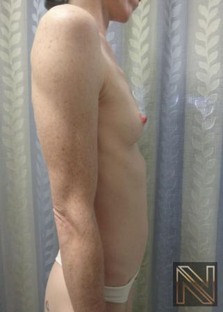Breast Augmentation: Patient 17 - Before Image 4