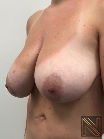 Breast Lift: Patient 8 - Before Image 2