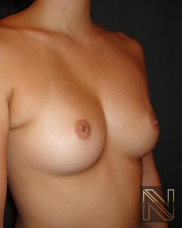 Inverted Nipple Surgery: Patient 1 - Before and After Image 3