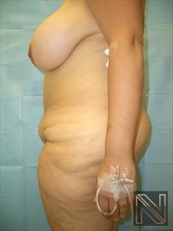 Abdominoplasty: Patient 19 - Before 2