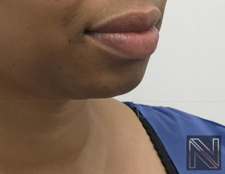 Chin Augmentation: Patient 3 - Before Image