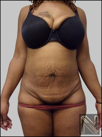 Mini Tummy Tuck: Patient 3 - Before Image