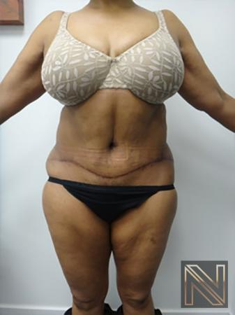 Abdominoplasty: Patient 8 - After Image