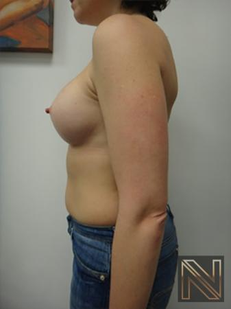 Breast Augmentation: Patient 9 - After Image 4