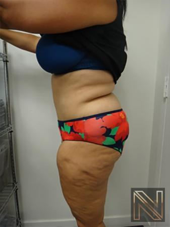 Abdominoplasty: Patient 14 - After Image 2