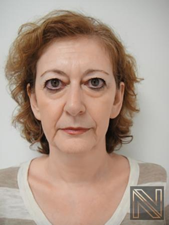 Liquid Facelift: Patient 2 - Before Image