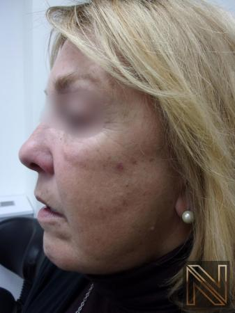Laser Skin Resurfacing - Face: Patient 1 - Before and After Image 2