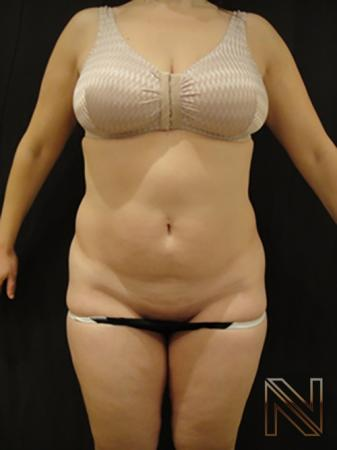 Liposuction: Patient 5 - Before Image