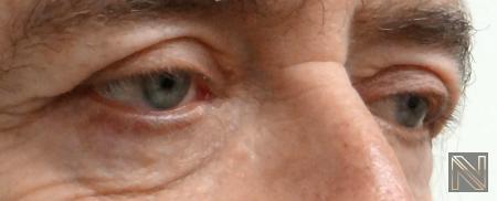 Blepharoplasty: Patient 7 - After Image 2