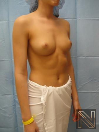Breast Augmentation: Patient 6 - Before Image 3