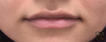 Fillers: Patient 8 - After Image