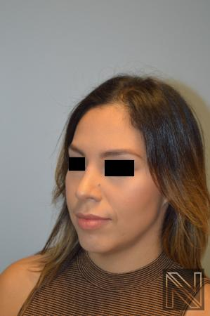 Rhinoplasty: Patient 6 - After Image 4