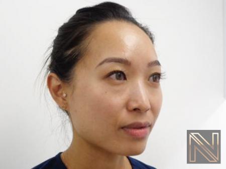 Laser Skin Resurfacing - Face: Patient 5 - After Image 2