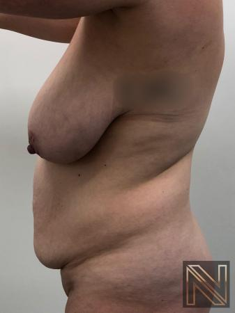 Abdominoplasty: Patient 28 - Before Image 2
