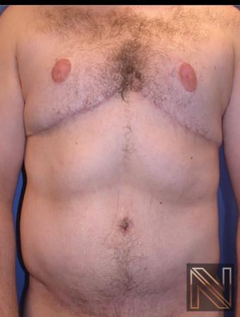 Abdominoplasty: Patient 32 - After 1
