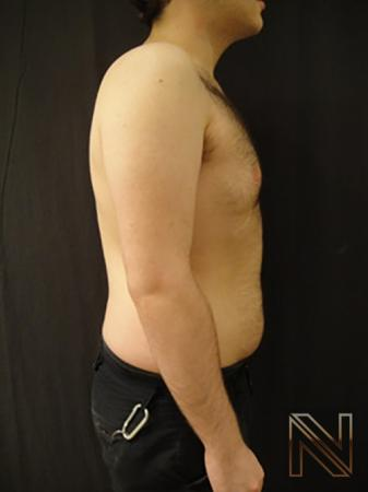 Gynecomastia: Patient 5 - After Image 4