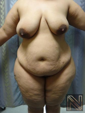 Abdominoplasty: Patient 26 - Before 1