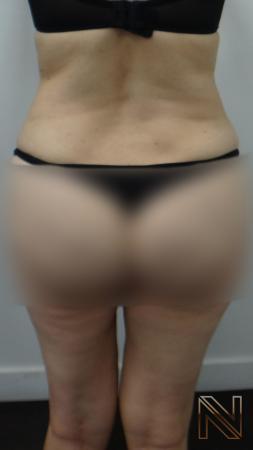 Liposuction: Patient 12 - After 2