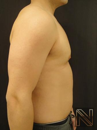 Gynecomastia: Patient 3 - After Image 5