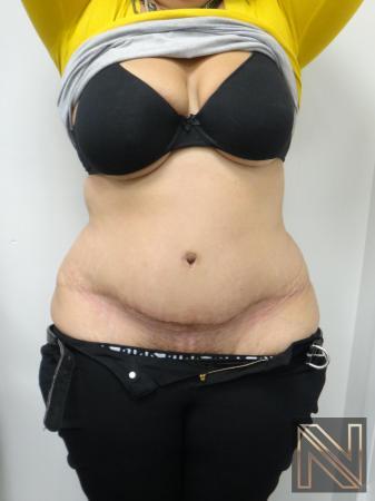 Abdominoplasty: Patient 26 - After 1